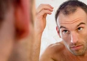 ریزش مو غدد فوق کلیوی